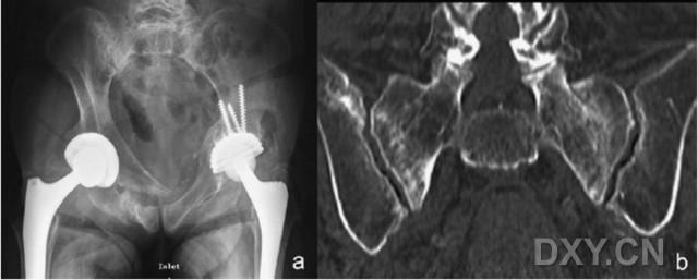 骶骨骨折走路会移位吗 经骶骨固定棒医治骨盆后环疲惫骨折的临床作用