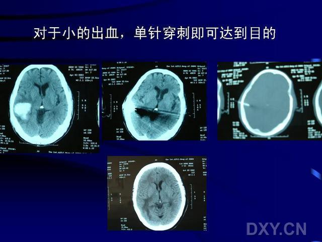 颅内血肿微创清除术 付耀高:颅内血肿微创清除术治疗高血压性脑出血的研究新进展