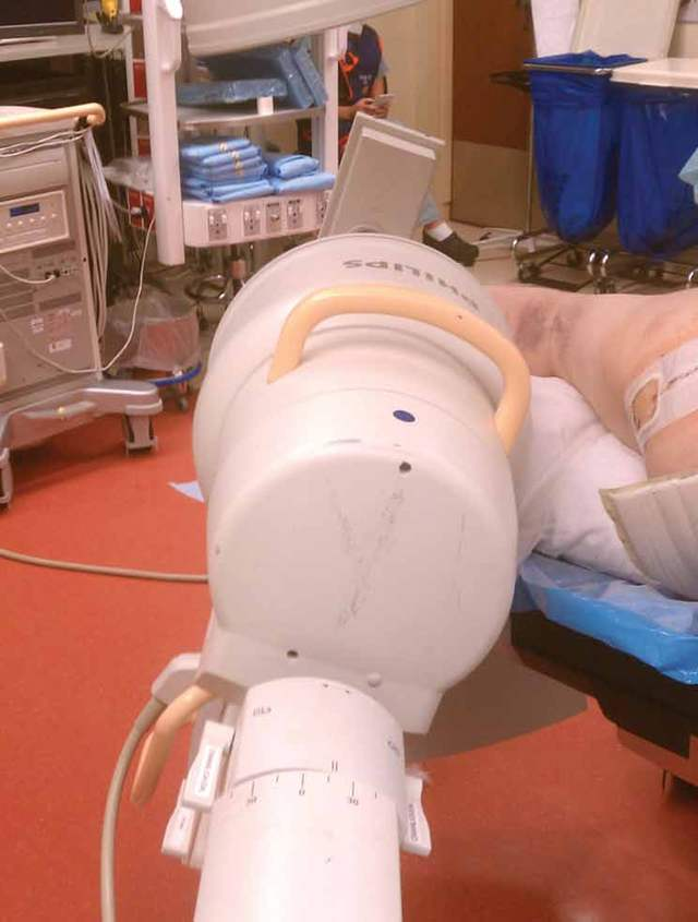 手术技术:闭合复位、固定跟骨骨折 - 小骨头 - 小骨头的博客