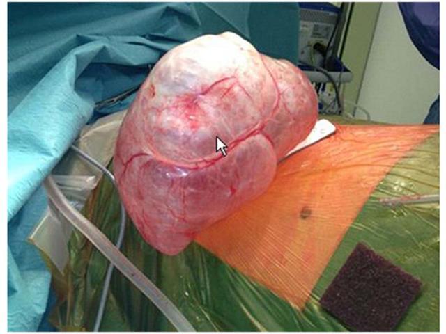 2014 ASCO肺癌手术.jpg