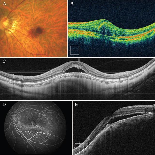 头绪膜重生血管10年后 近视致盲杀手——头绪膜重生血管全记录