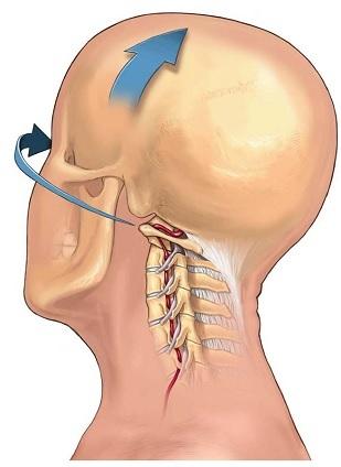 颈部动脉夹层 颈部推拿与颈动脉夹层(综述)