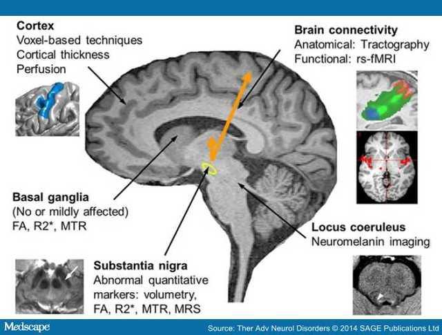 帕金森氏病 MRI在帕金森氏病中的应用