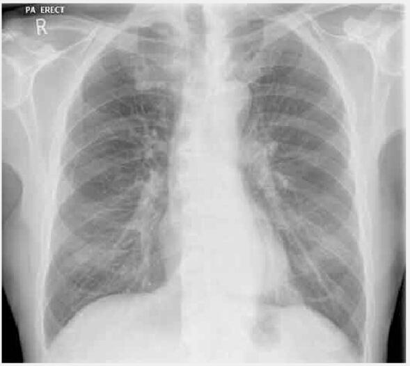 胸片.jpg