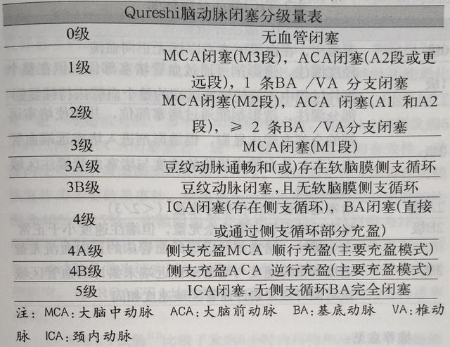 中国缺血性脑卒中血管内治疗指导规范