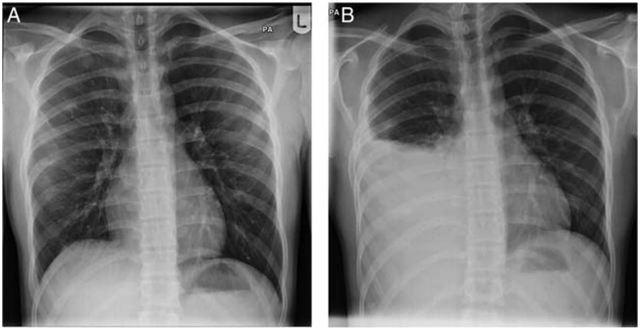 计数肋序数的骨性标志 那一抹被忽视的灰:骨性肋外生骨疣引起血胸一例