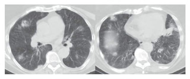 肺原发性淋巴瘤属几期 原发性肺淋巴瘤治疗发展