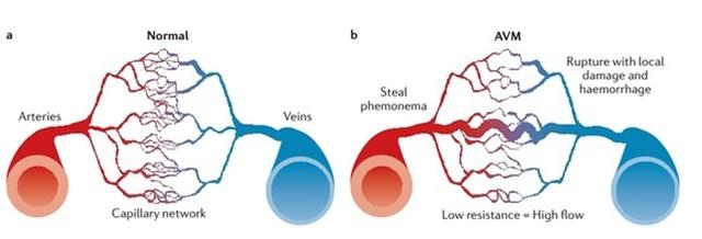 大脑动静脉变形 全面知道大脑动静脉变形 看这篇文章就够了