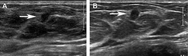 如何完成高质量乳腺超声检查【图文】