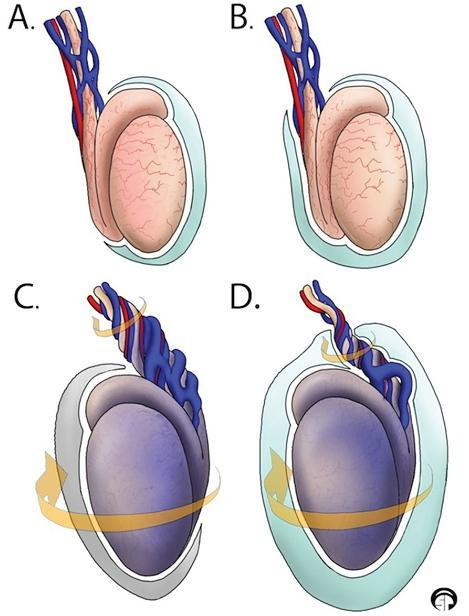 腹部超声和b超一样吗 总述:透过「超声之眼」看新生儿肿大阴囊