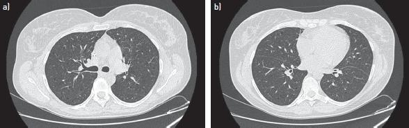 淋巴管瘤病2.jpg