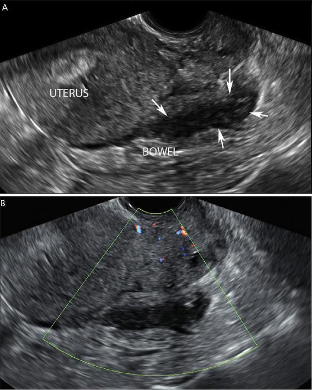 子宫内膜异位症b超体现 肠道子宫内膜异位症:不一样的彗星尾征