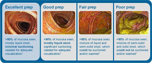 结肠镜查看前肠道预备 结肠镜检:你的患者肠道预备好了吗?