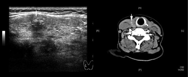甲状腺结节良恶性5规范 甲状腺结节钙化:超声更胜 CT