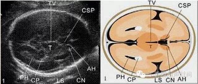 胎儿体系超声查看是什么 一文读懂:正常胎儿妊娠中期超声查看规范切面