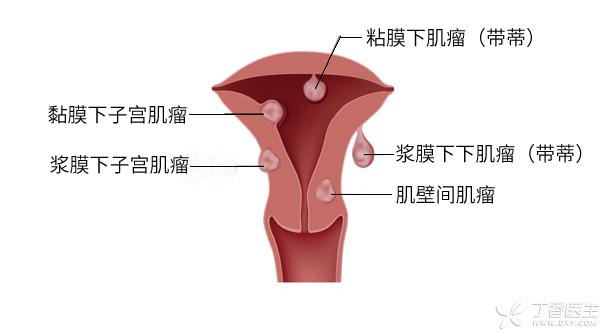 子宫肌瘤.jpg