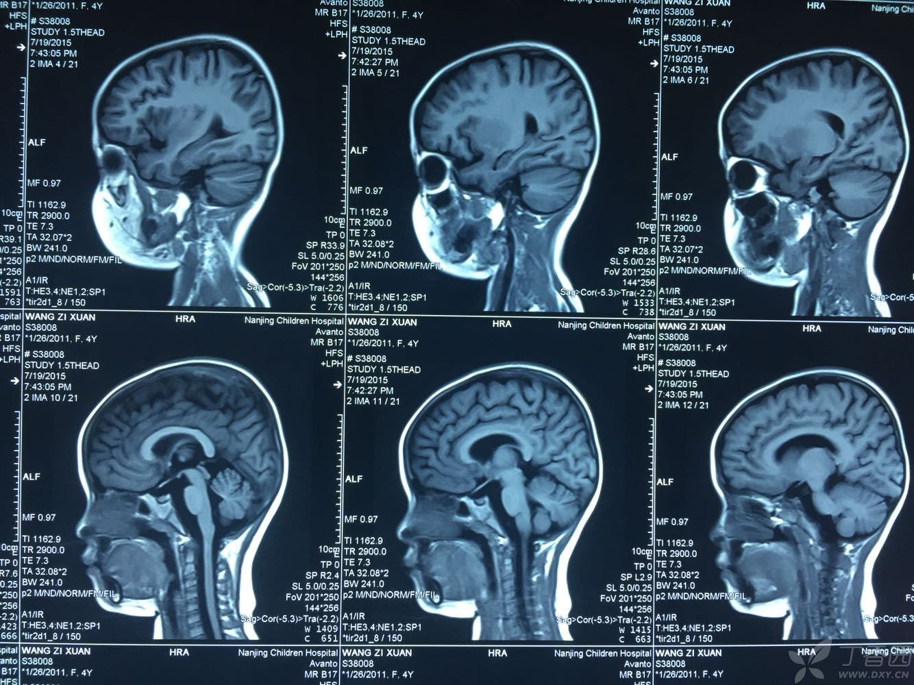 脑干解剖图