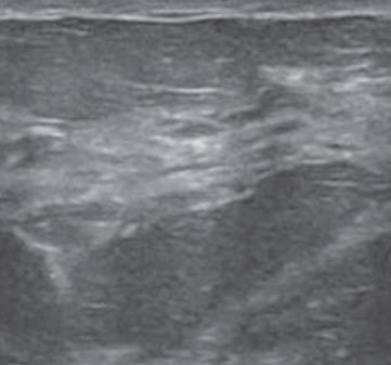 妊娠期乳腺超声体现 妊娠期及哺乳期乳腺:正常及反常超声体现轻松上手