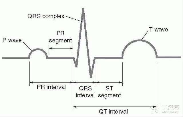 获得性学者综合征 获得性长 QT 综合征临床常见 10 点问答