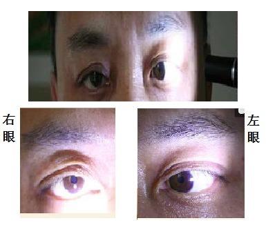图5-阿罗瞳孔.png
