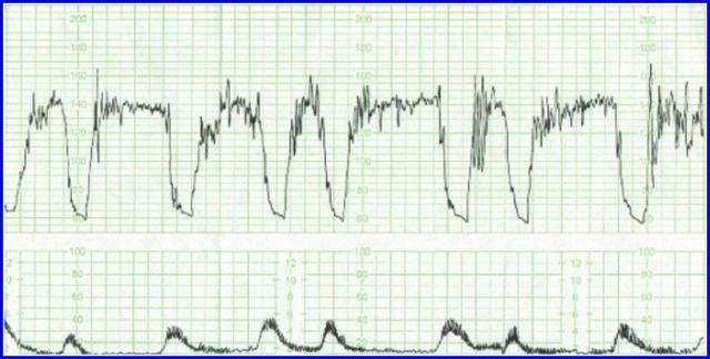 III类胎监-频发重度变异减速.png